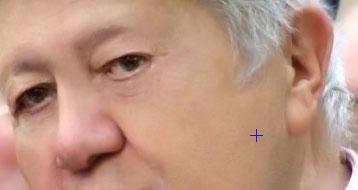 Mário Soares - nariz e orelha reduzidos